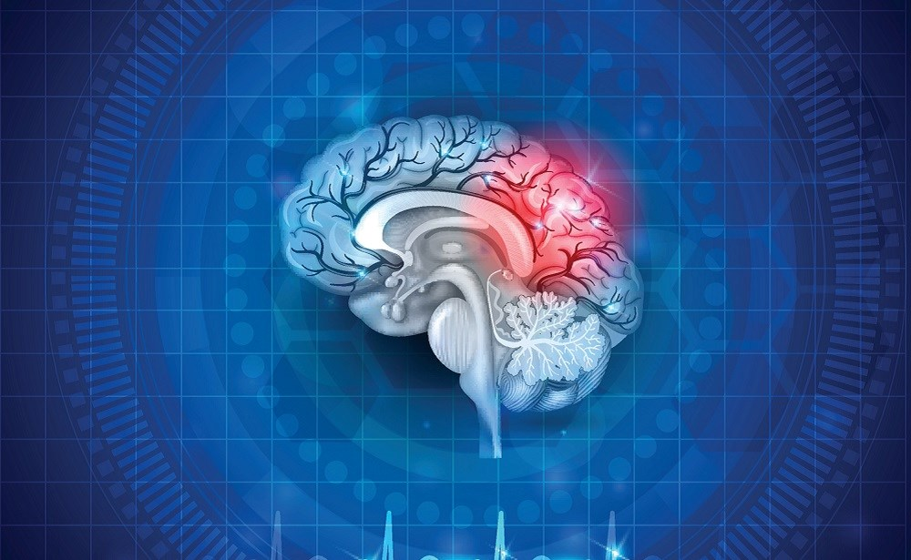 Concussion-Related Biomarkers Vary Based on Sex, Race
