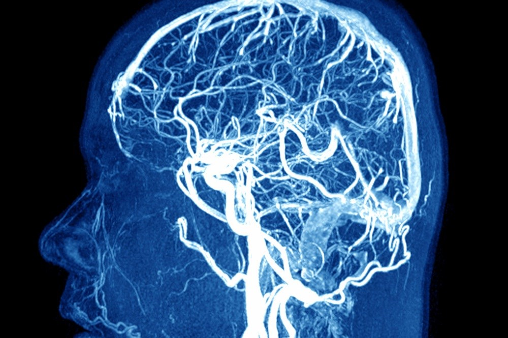 Crossed Cerebellar Diaschisis May Be Benign in Migraine With Aura