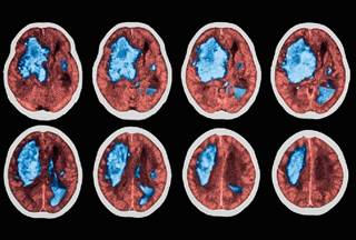 Five percent of patients who experience either TIA or a minor stroke will experience a major stroke within the next 24 hours.