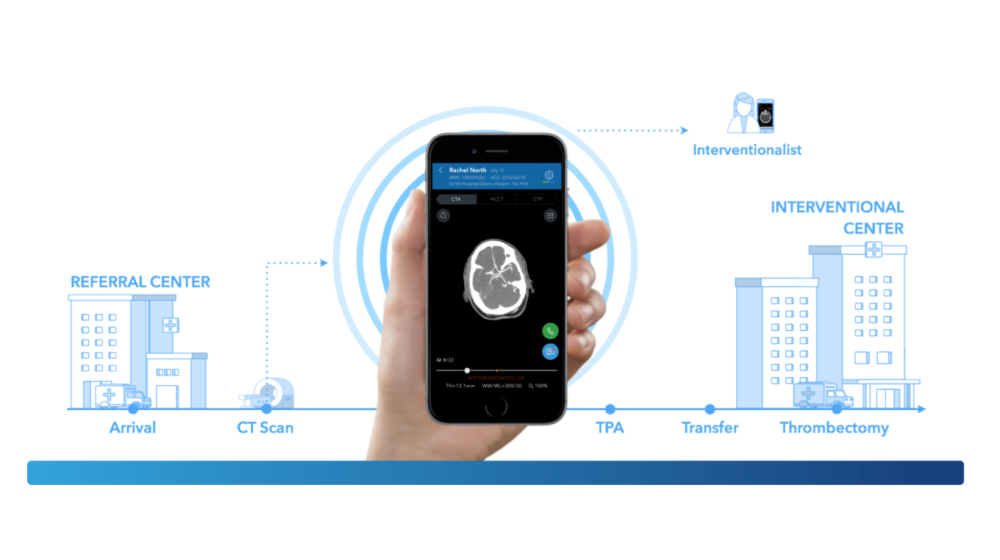 FDA Approves Clinical Decision Support Tool for Stroke