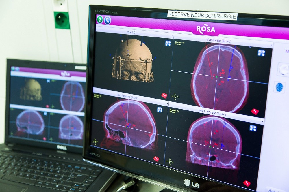 The investigators report that the new reference point is feasible at 1.5 T magnetic resonance imaging. <i>Photo Credit: Phanie / GARO</i>