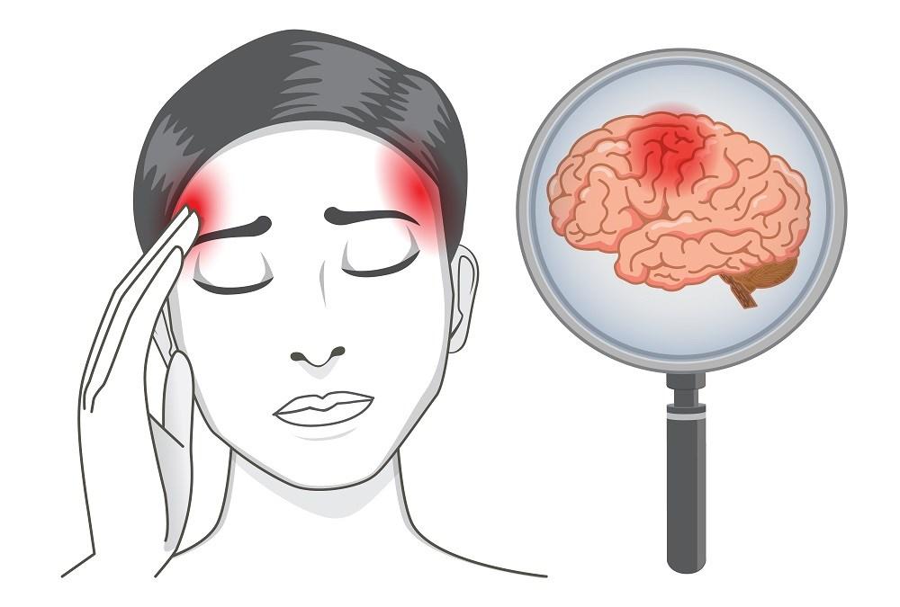 Stroke in Women: Risk, Prevention, and Treatment