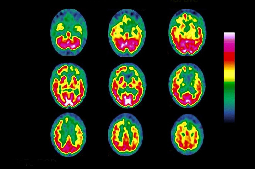 Functional imaging can help neurologists navigate diagnosis and inform treatment and patient outcomes.
