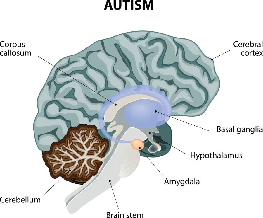 Researchers found that there was an initial excess of amygdala neurons during childhood in individuals with autism spectrum disorder.