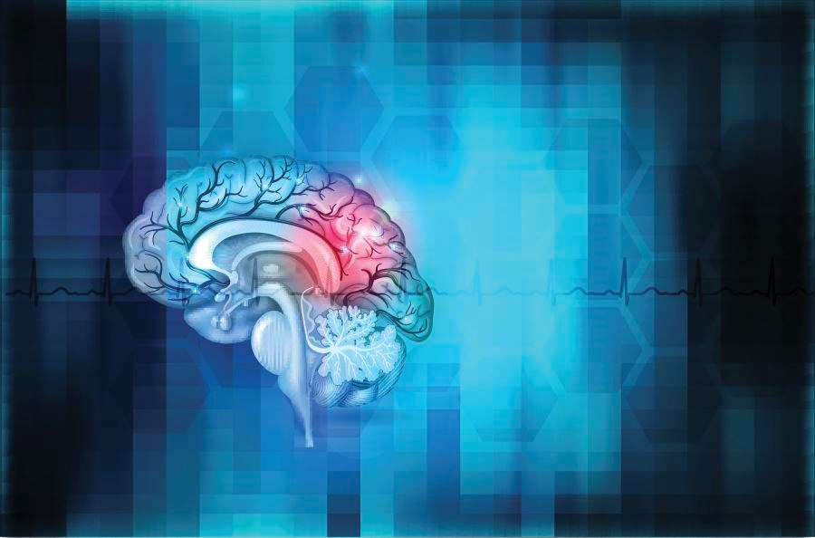 Biomarker Indicates Brain Tissue at Risk for Stroke in Sickle Cell Disease