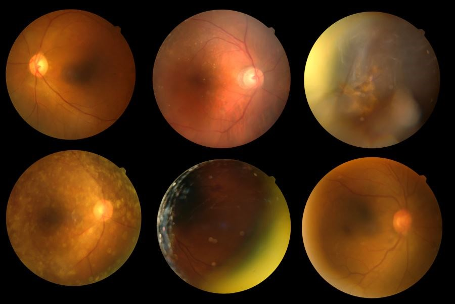 The average 20-year change in cognitive function was greater in patients with moderate/severe retinopathy vs patients without retinopathy.