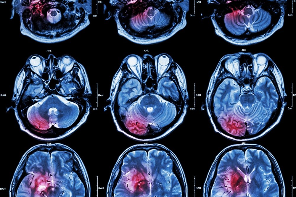 Rate of MI, Stroke Higher After Respiratory Infection