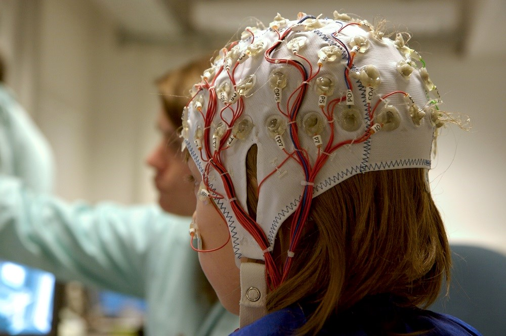 Early-life epilepsy should be treated with the same urgency as pediatric cancer.