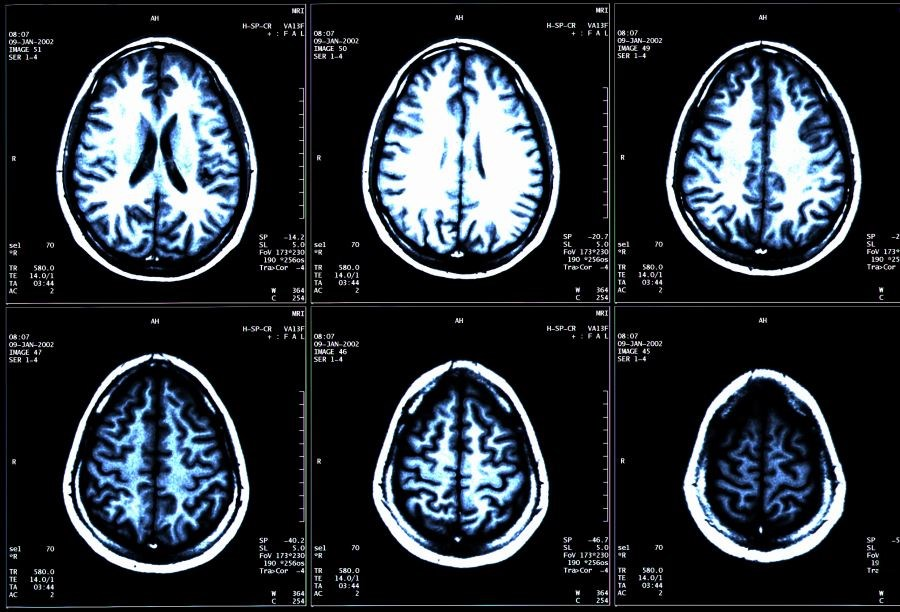 Individuals with multiple sclerosis are at increased risk for cardiovascular factors that contribute to brain atrophy.