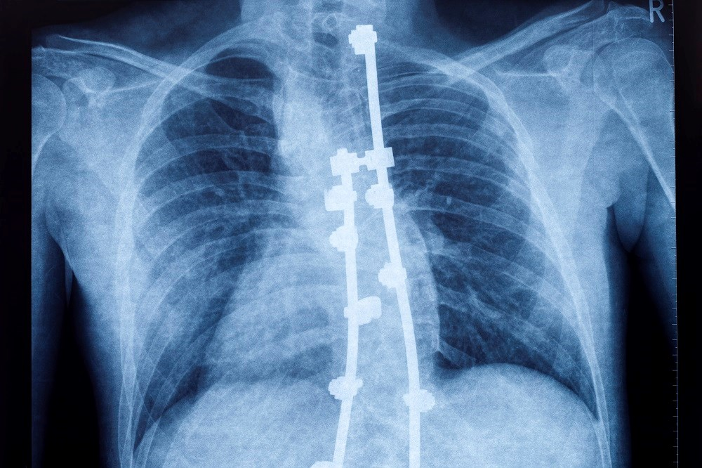 Scoliosis surgery in patients with CP leads to a significant improvement in HRQoL.