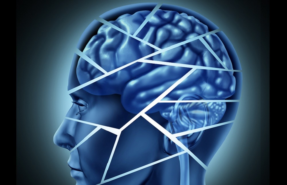 Poststroke Neurocognitive Disorder Prevalent in Acute Stroke