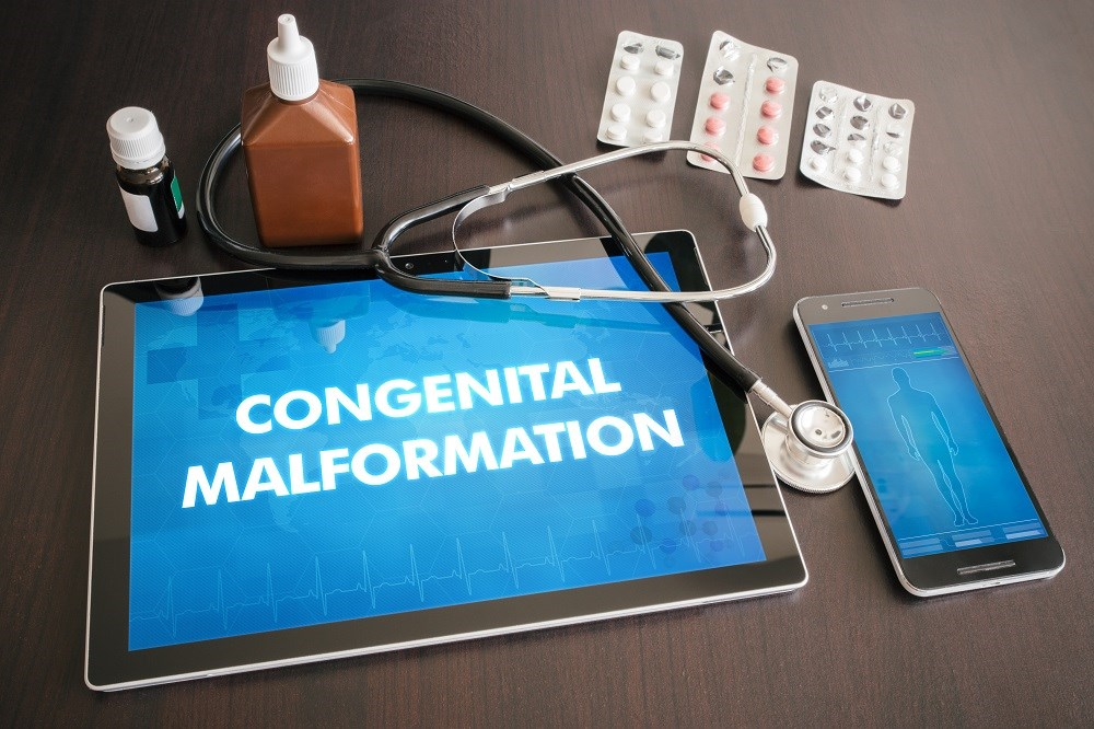 Comparative Risk for Major Congenital Malformations With High-Dose Antiepileptic Drugs