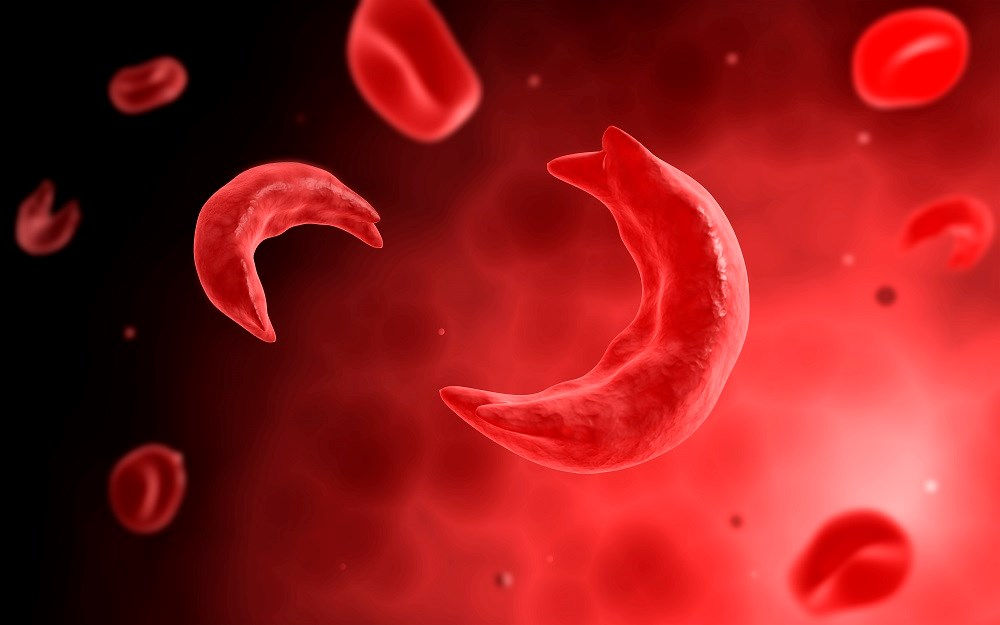 Sickle Cell Trait Does Not Reliably Predict Ischemic Stroke in African Americans