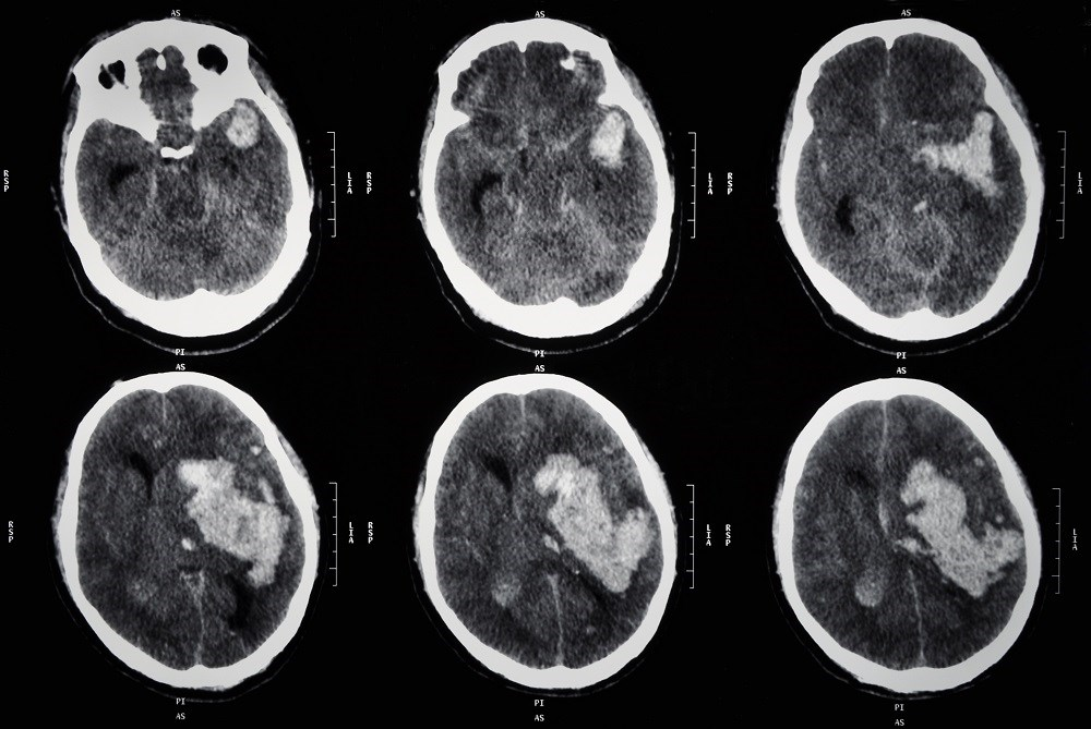 Prediction Algorithm Stratifies ICH Patients at Risk for Hematoma Expansion