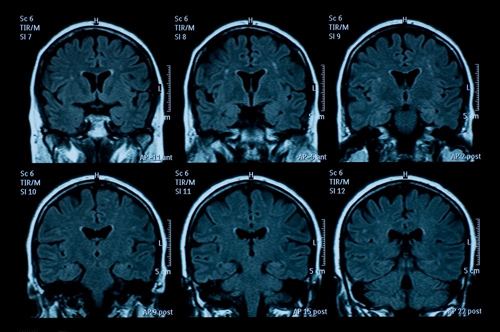 People with multiple sclerosis who initiated treatment with fingolimod after 2 previous iDMTs showed improved outcomes, such as a smaller degree of brain volume loss.