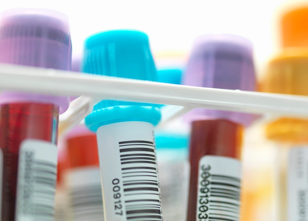 New Blood Test Identifies Metabolic Subtypes Linked to Autism Spectrum Disorder