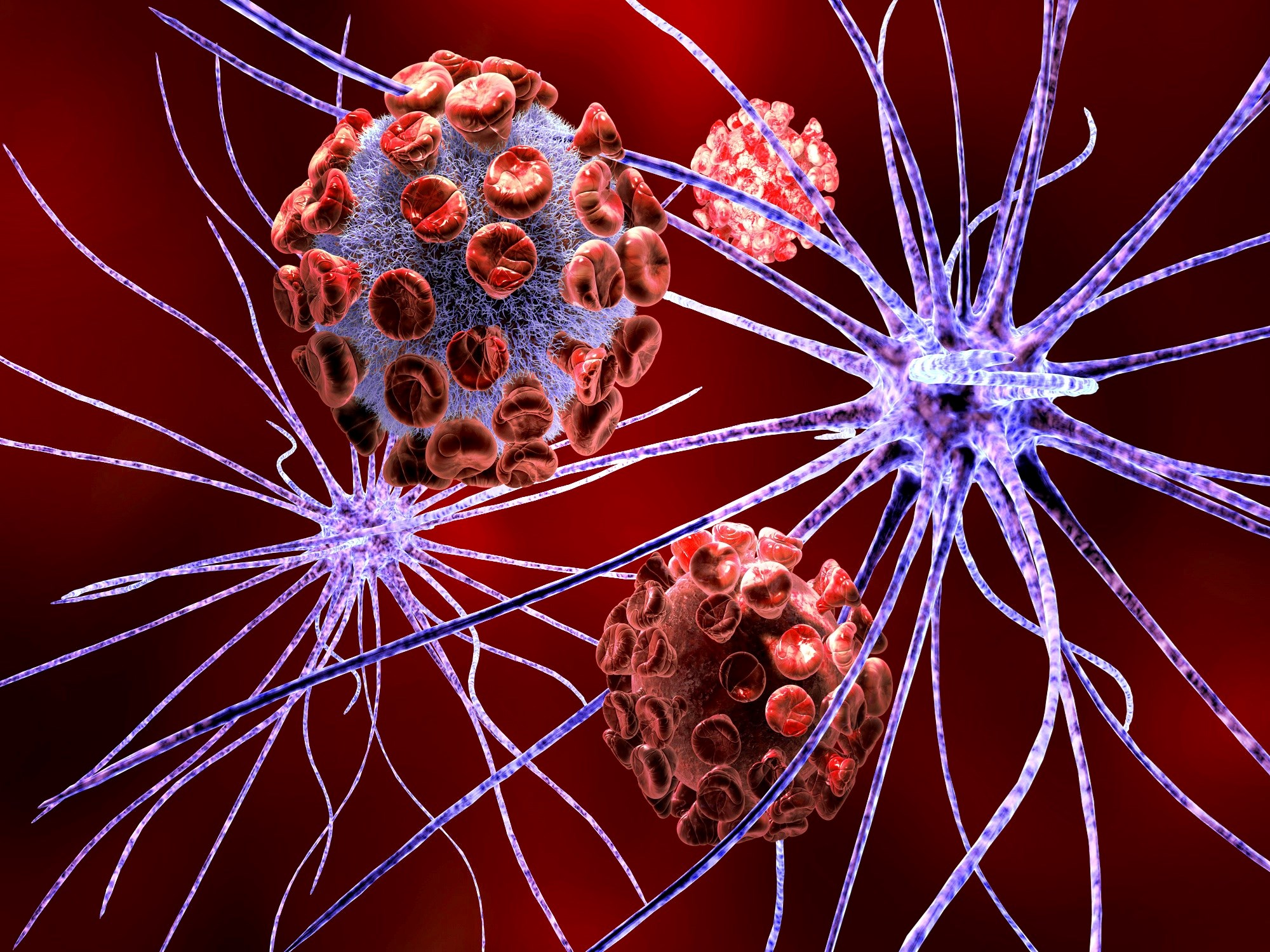 Herpesvirus Abundant in Alzheimer Disease Brain, New Study Finds