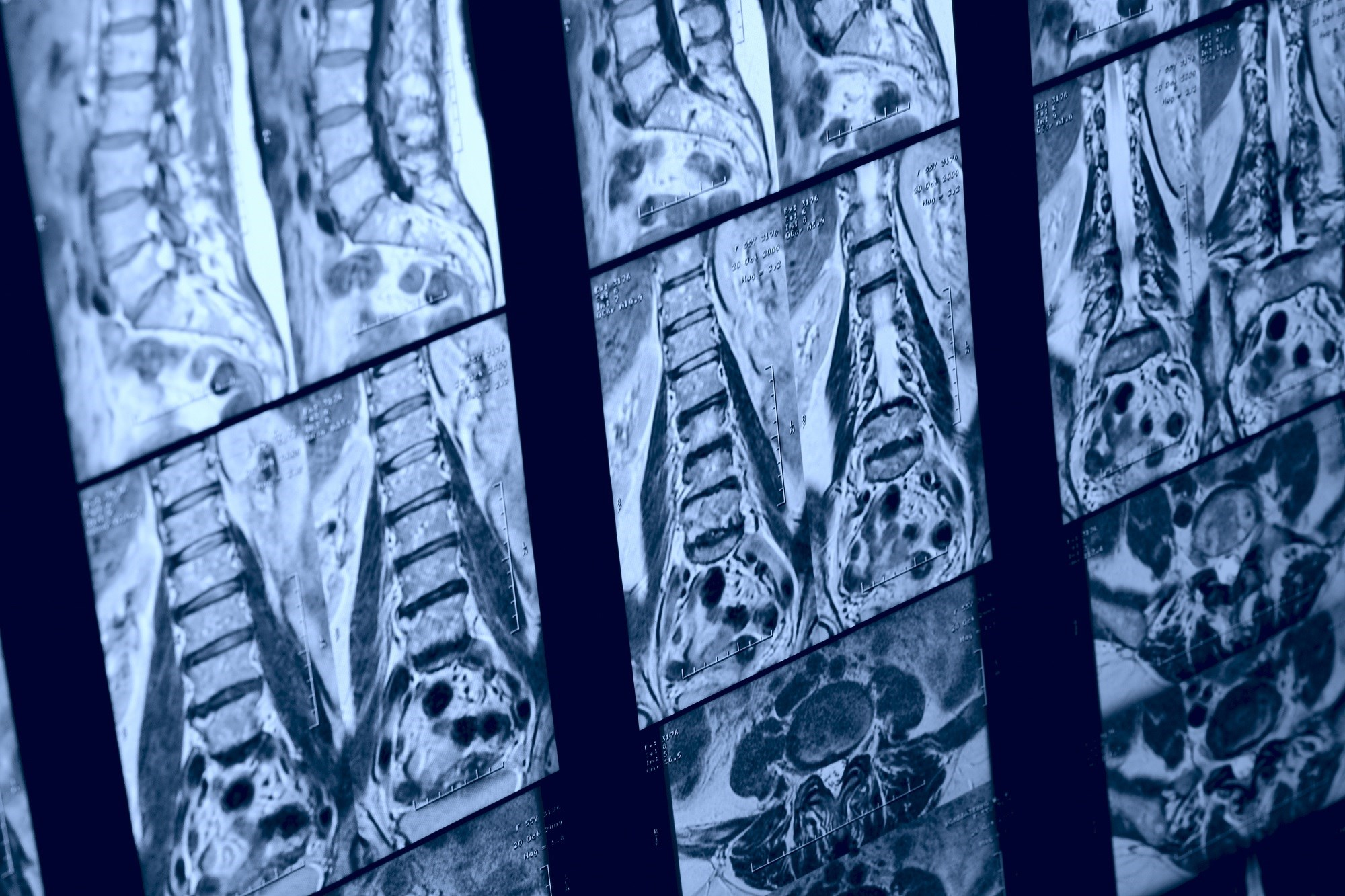 Spinal cord volume loss may be a predictor of clinical outcomes in primary progressive multiple sclerosis.