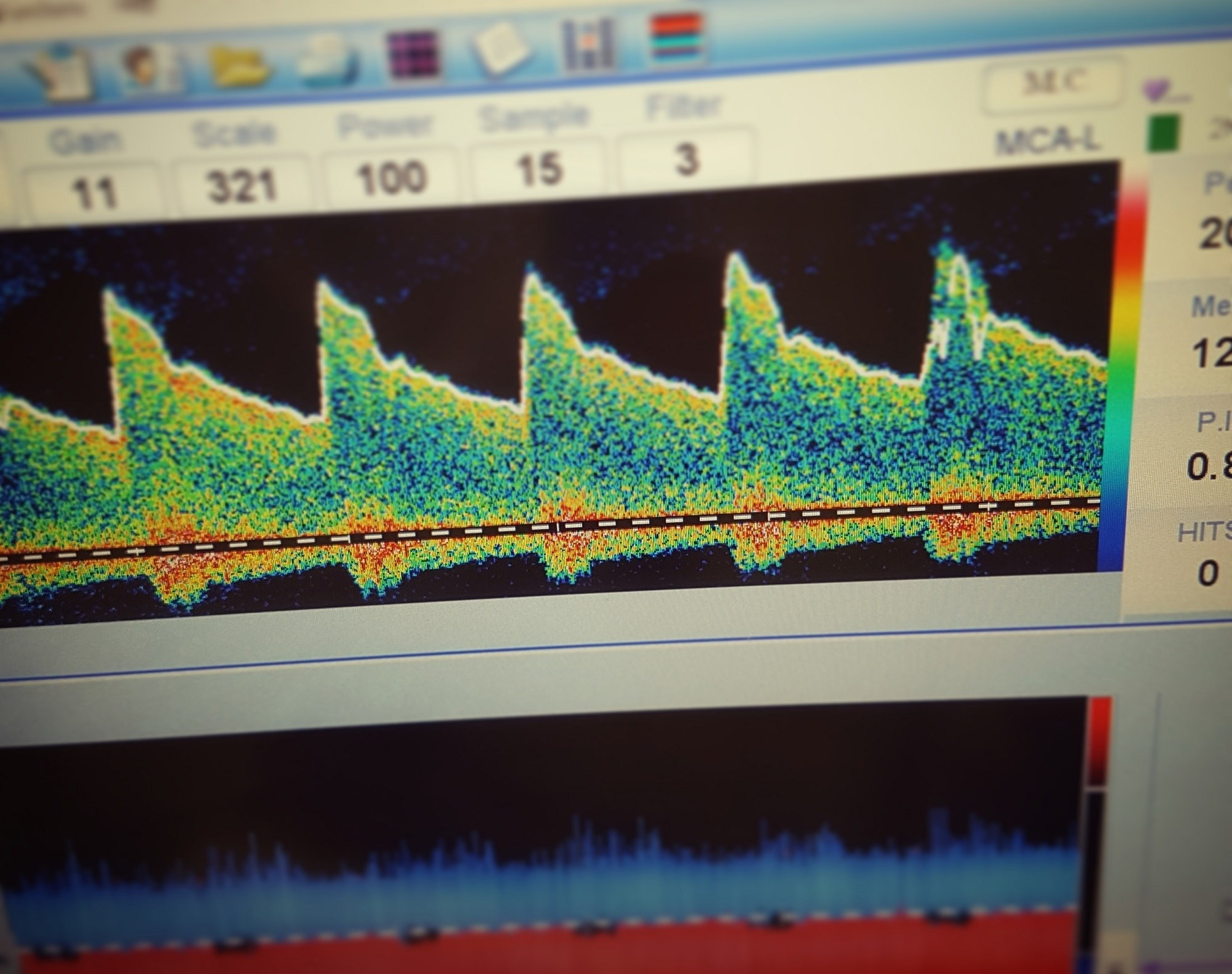 Transcranial Doppler ultrasound is effective in detecting acute intracranial artery occlusions.