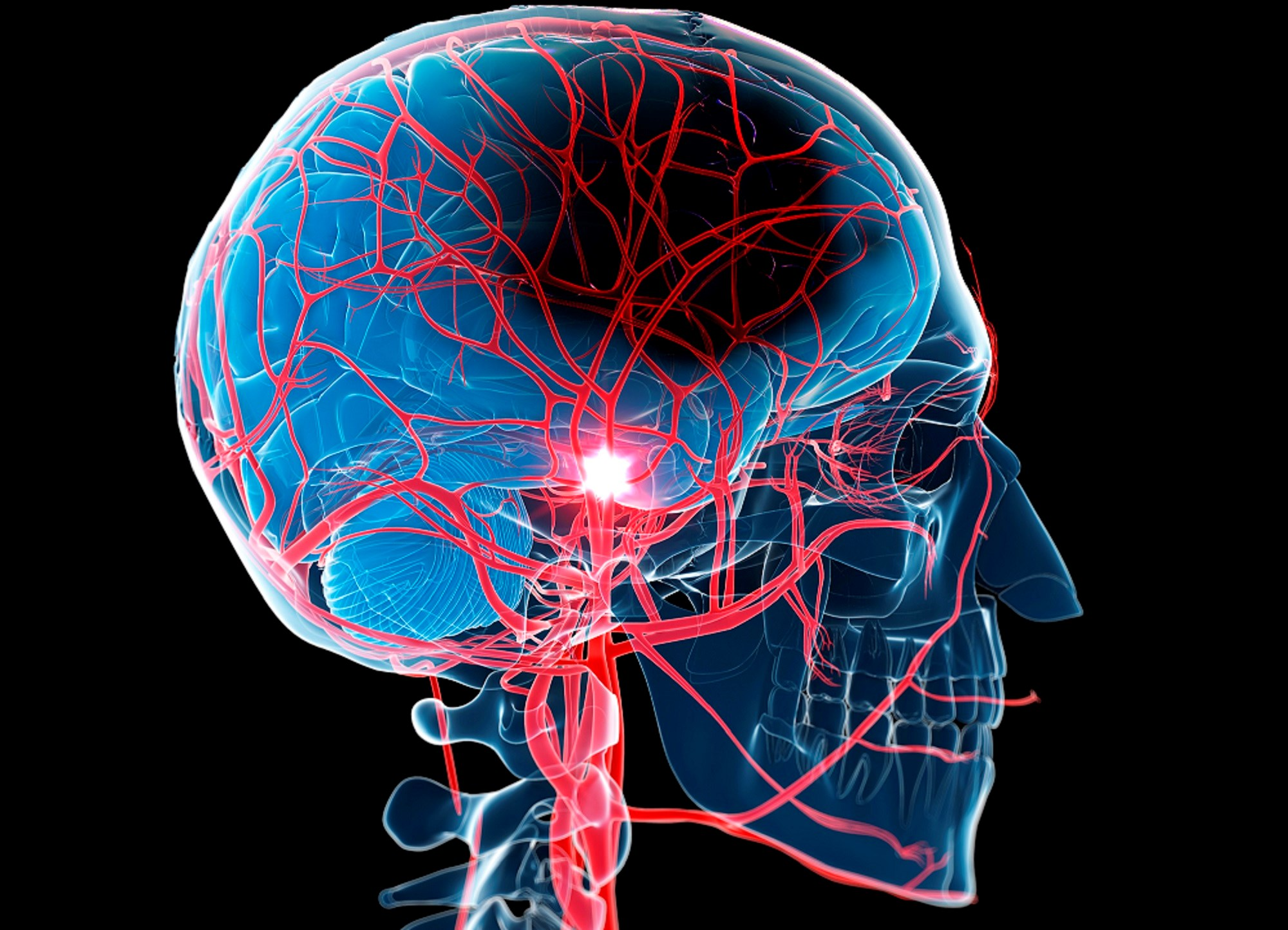 Improved Outcomes With New Protocol for Treating Acute Ischemic Stroke