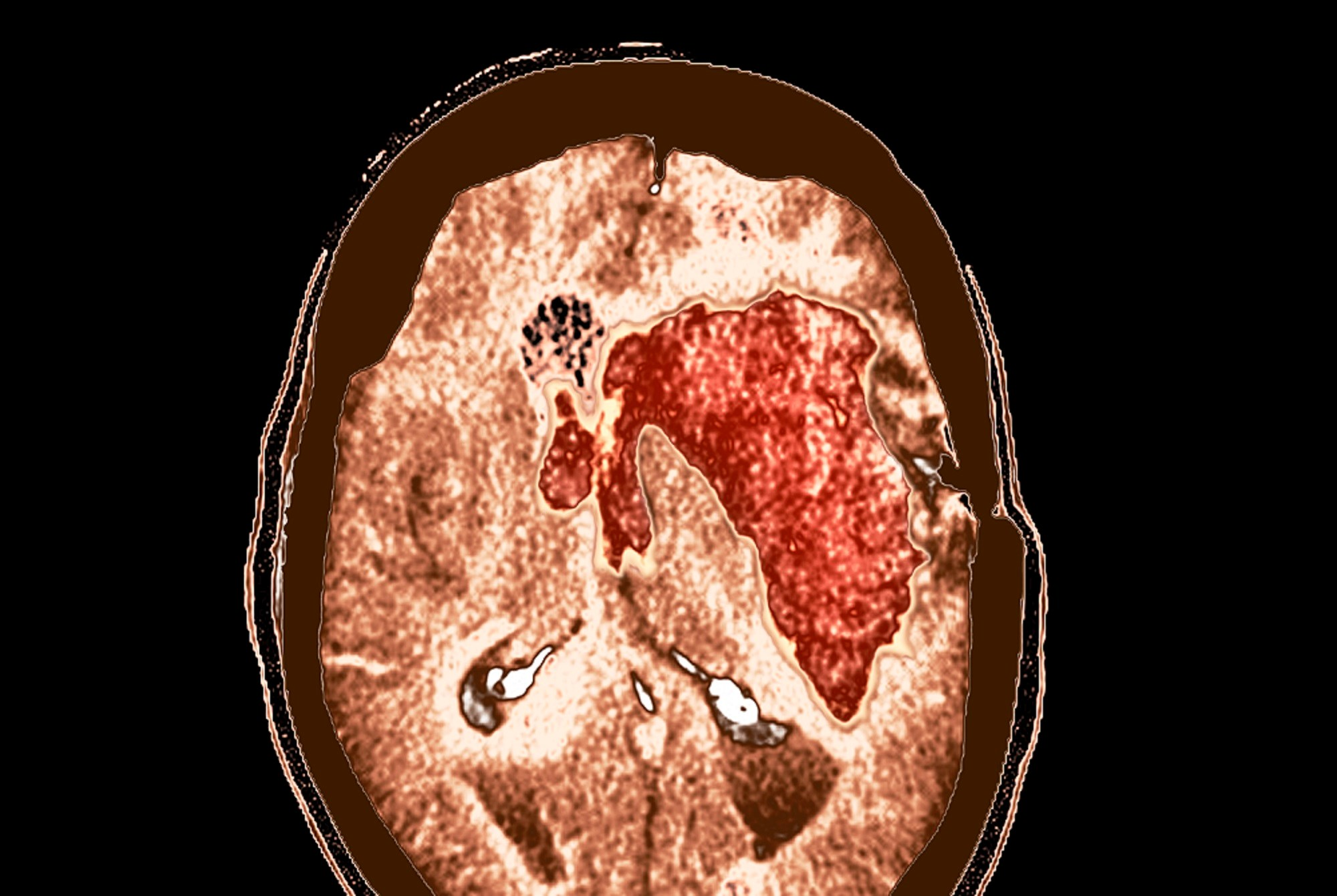 Early Neurological Deterioration in Intracranial Hemorrhage Linked to Worse Outcomes