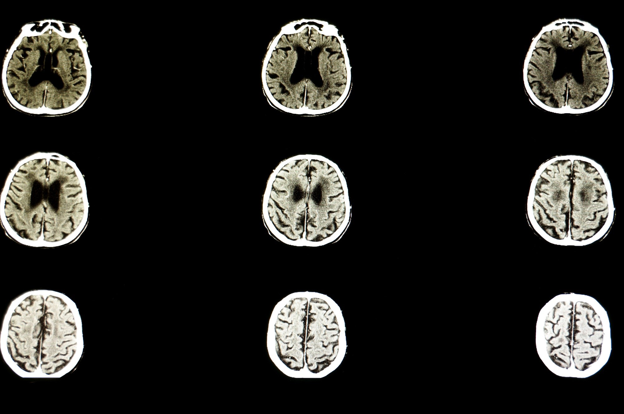 In patients with progressive multiple sclerosis, slower progression of brain atrophy was seen with ibudilast versus placebo.