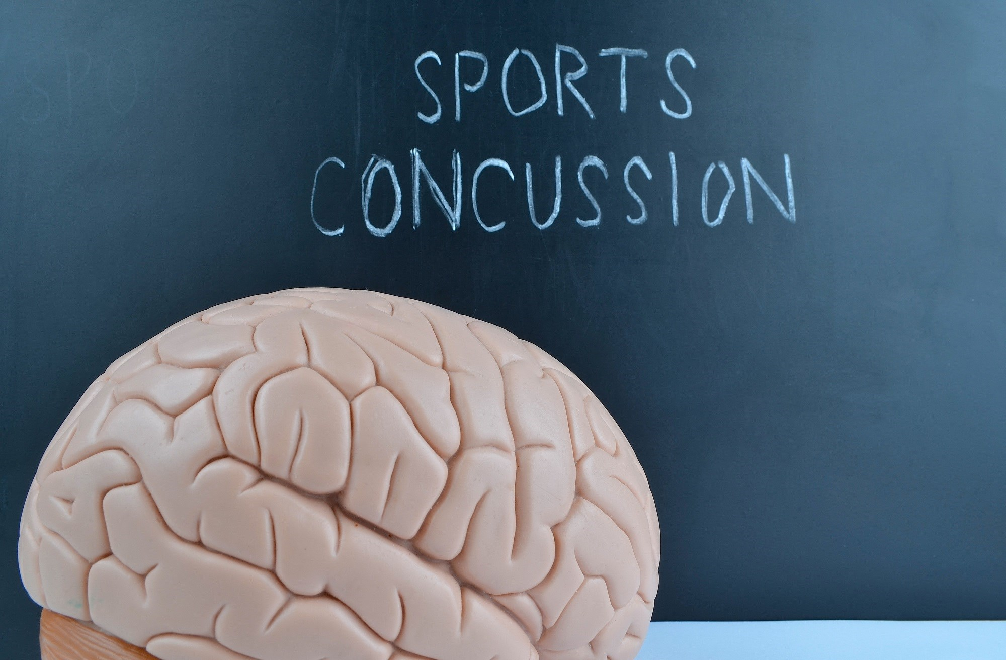 Sports related concussion may result in neuropathological changes but acute clinical signs and symptoms reflect functional disturbance rather than structural injury.