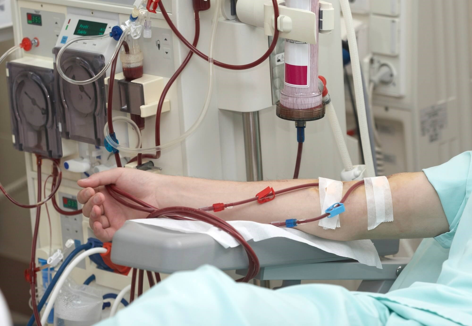 High Frequency of Headaches Following Dialysis Associated With BUN and Blood Pressure