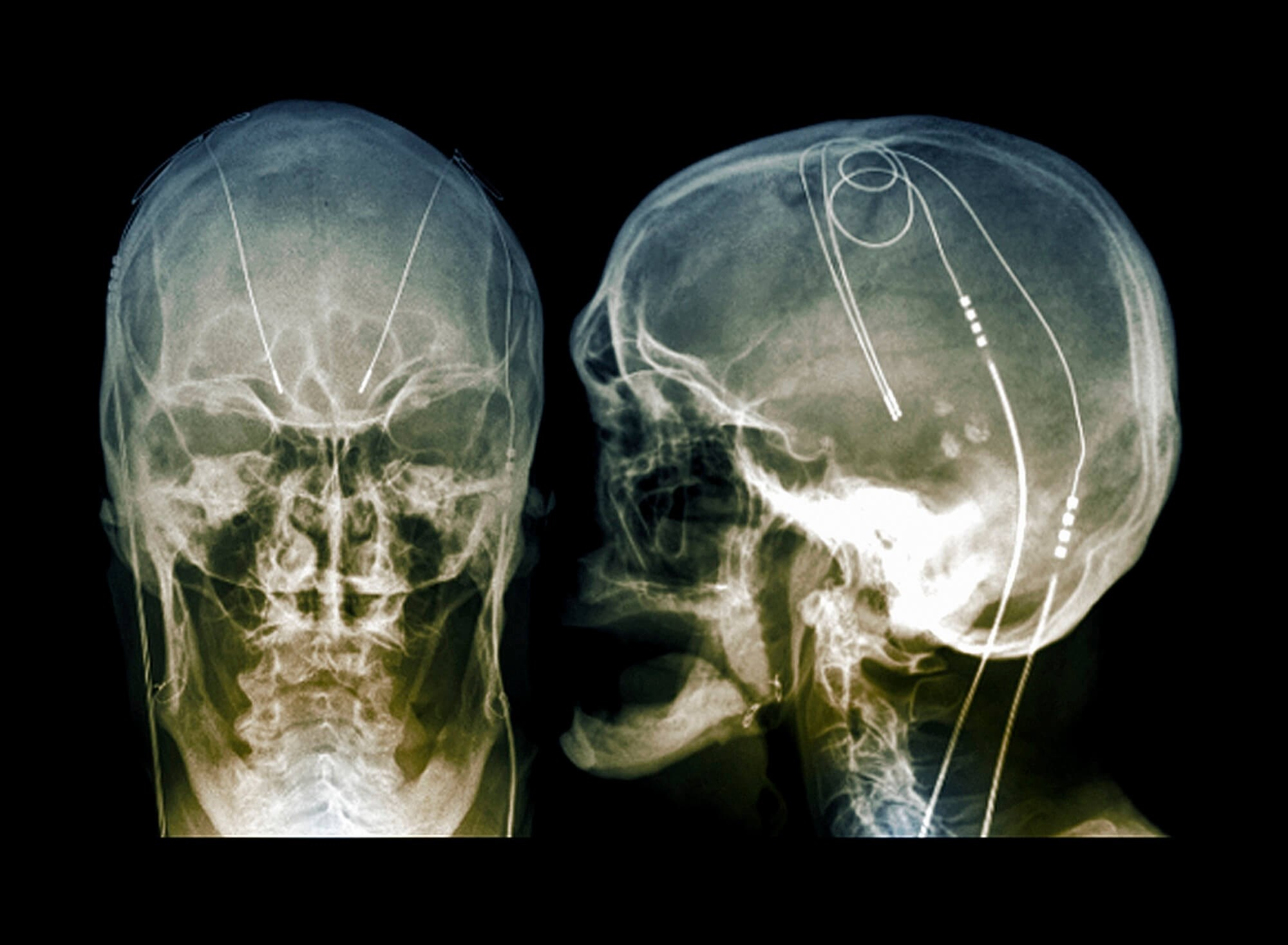 Deep brain stimulation showed long-term benefits in both younger and older patients with Parkinson disease. <i>Credit:ZEPHYR/Science Source</i>