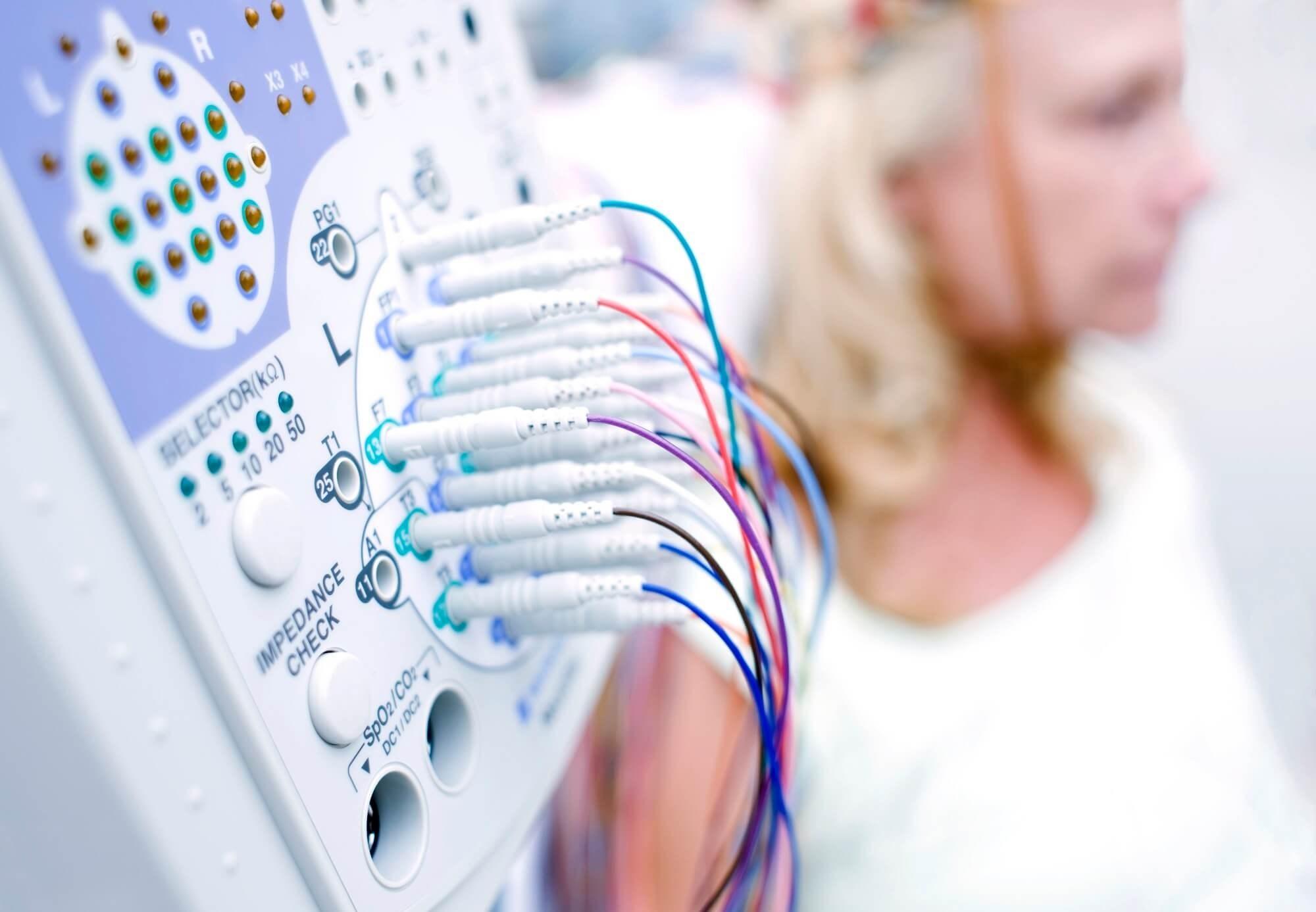 Quantitative EEG Offers Effective Detection of Parkinson Disease Biomarkers