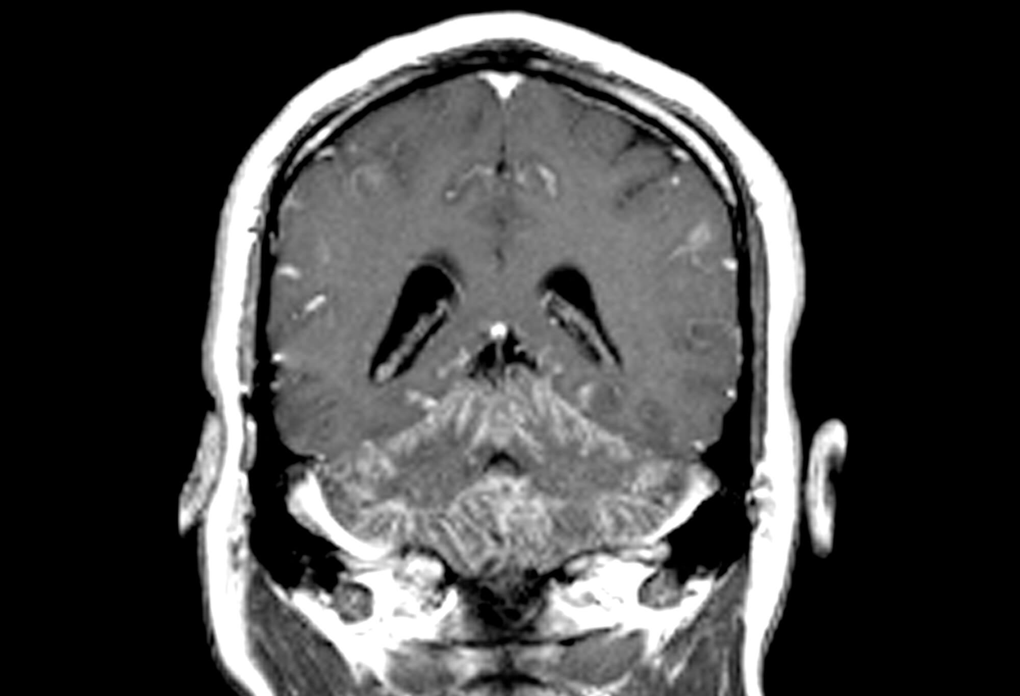 Sarcoidosis is a noncaseating granulomatous disease that causes inflammation and tissue damage in the involved organs. <i>Credit: Living Art Enterprises, LLC/Science Source</i>