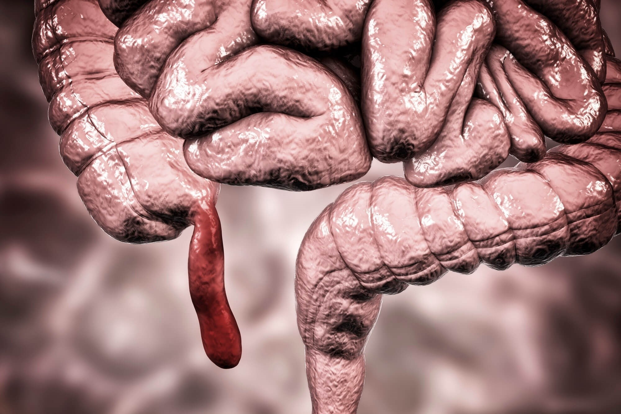 Removing Appendix May Lower Risk for Parkinson Disease