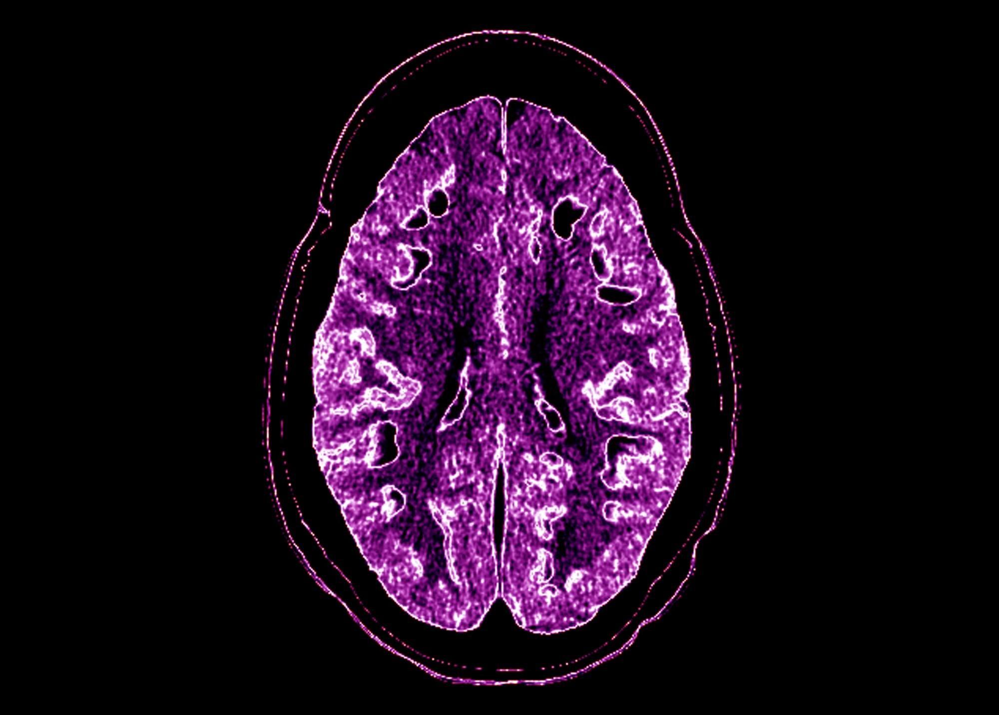 Symptoms of RVCL mimic those of tumefactive multiple sclerosis. <i>Credit:Living Art Enterprises/Science Source</i>