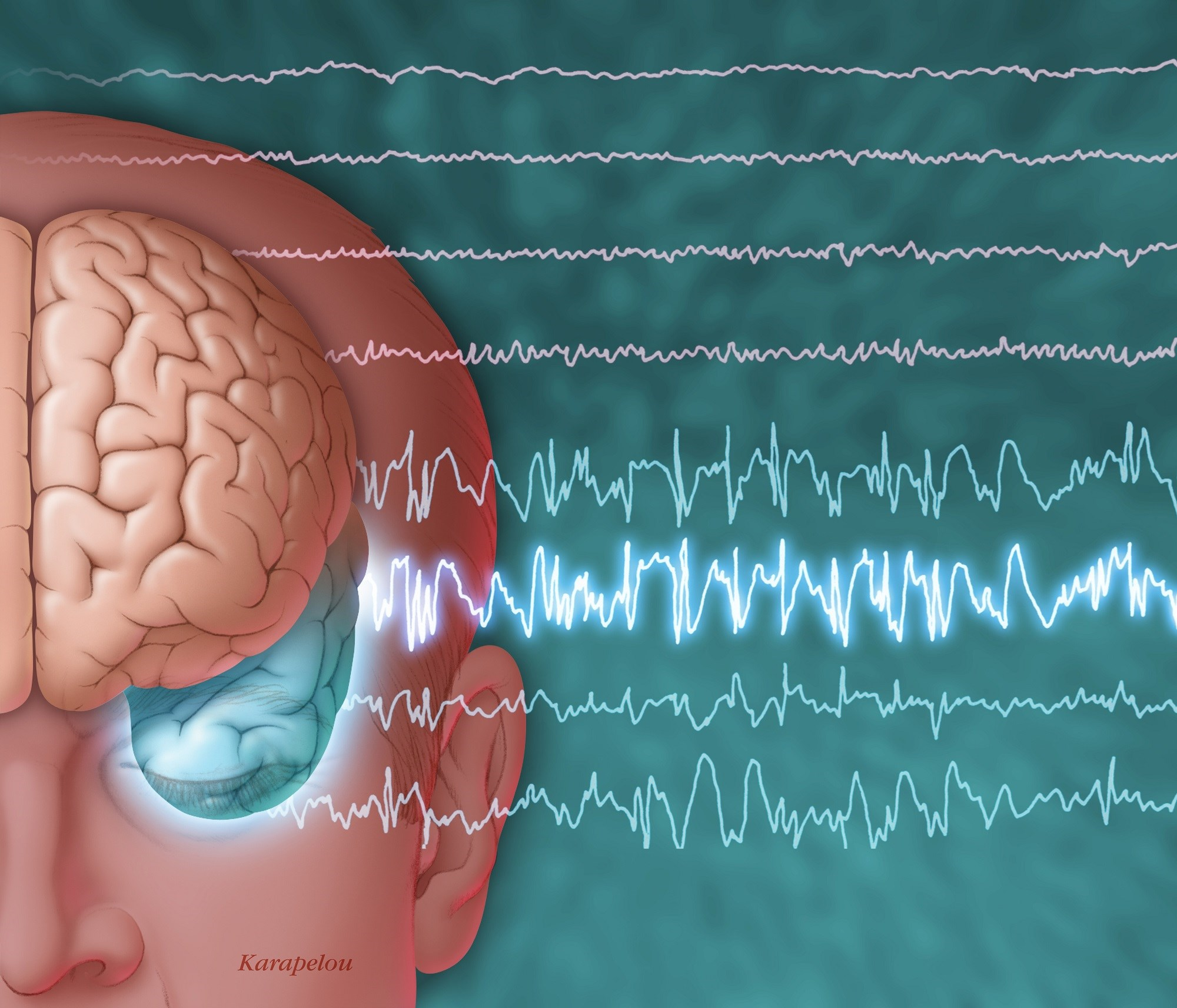 Psychotherapy May Reduce Frequency of Nonepileptic Seizures