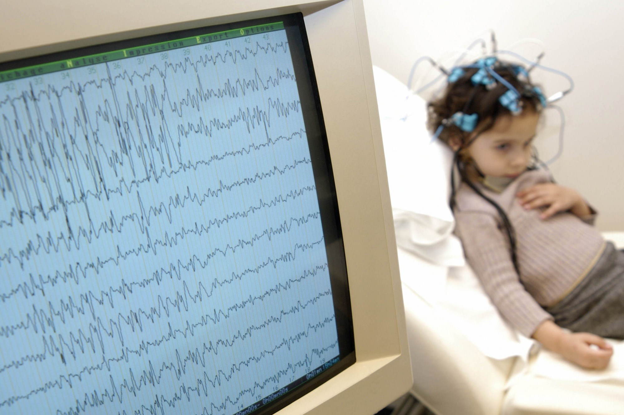 Lorcaserin May Reduce Motor Seizures in Pediatric Treatment-Resistant Epilepsy