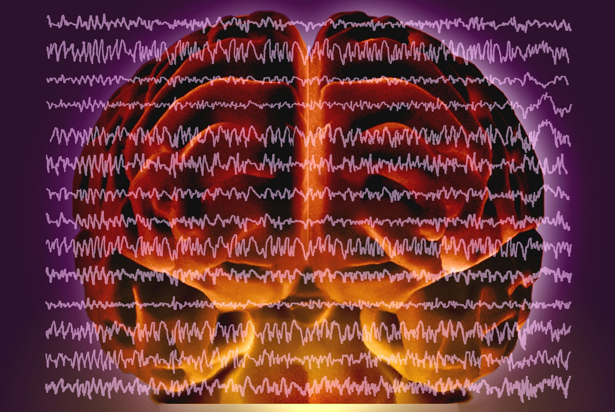 Overlapping Phenomenology in Focal Motor Epilepsy and Movement Disorders
