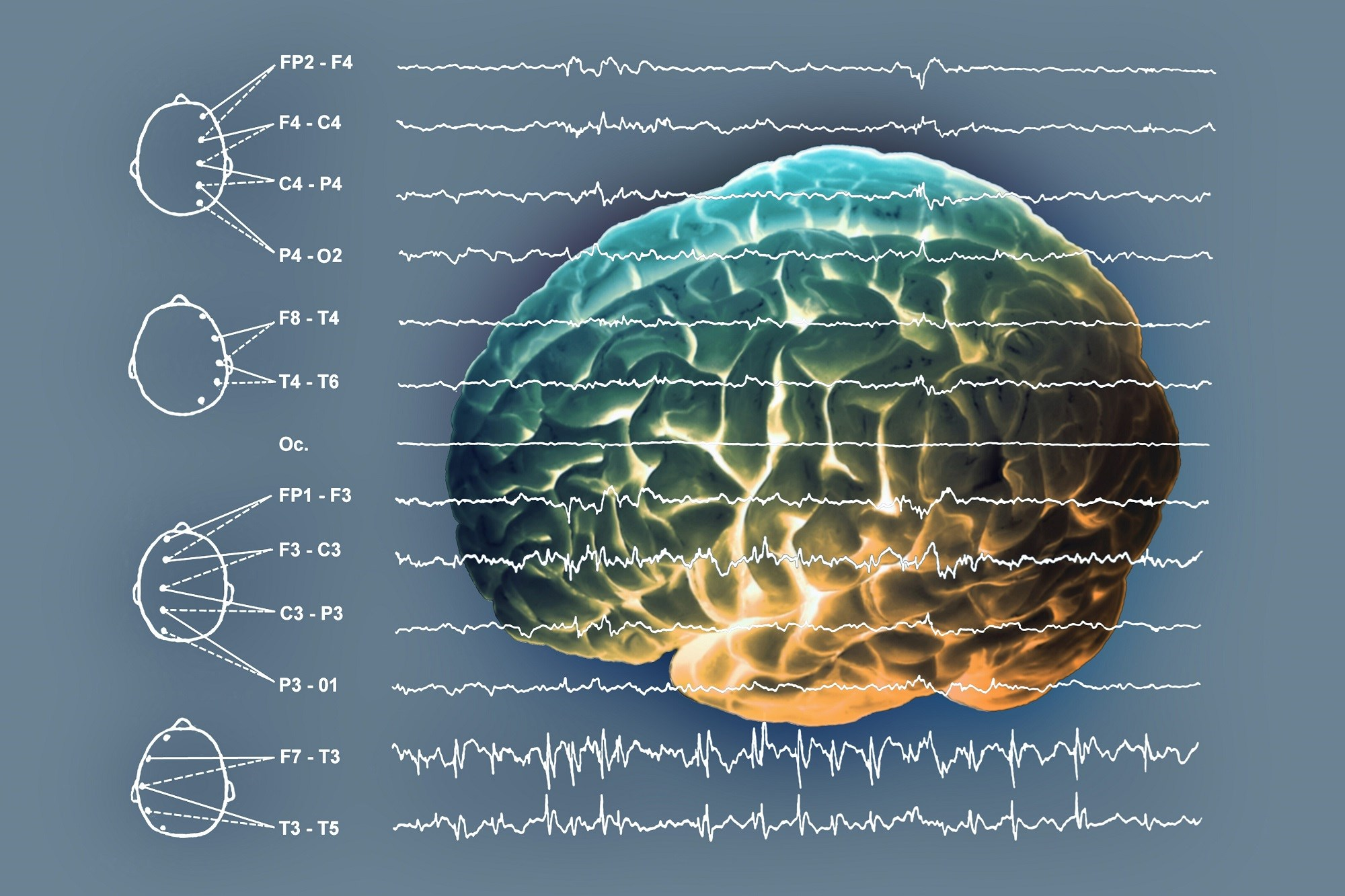 Patients with a higher number of Lennox-Gastaut syndrome traits had a greater likelihood of ongoing seizures.