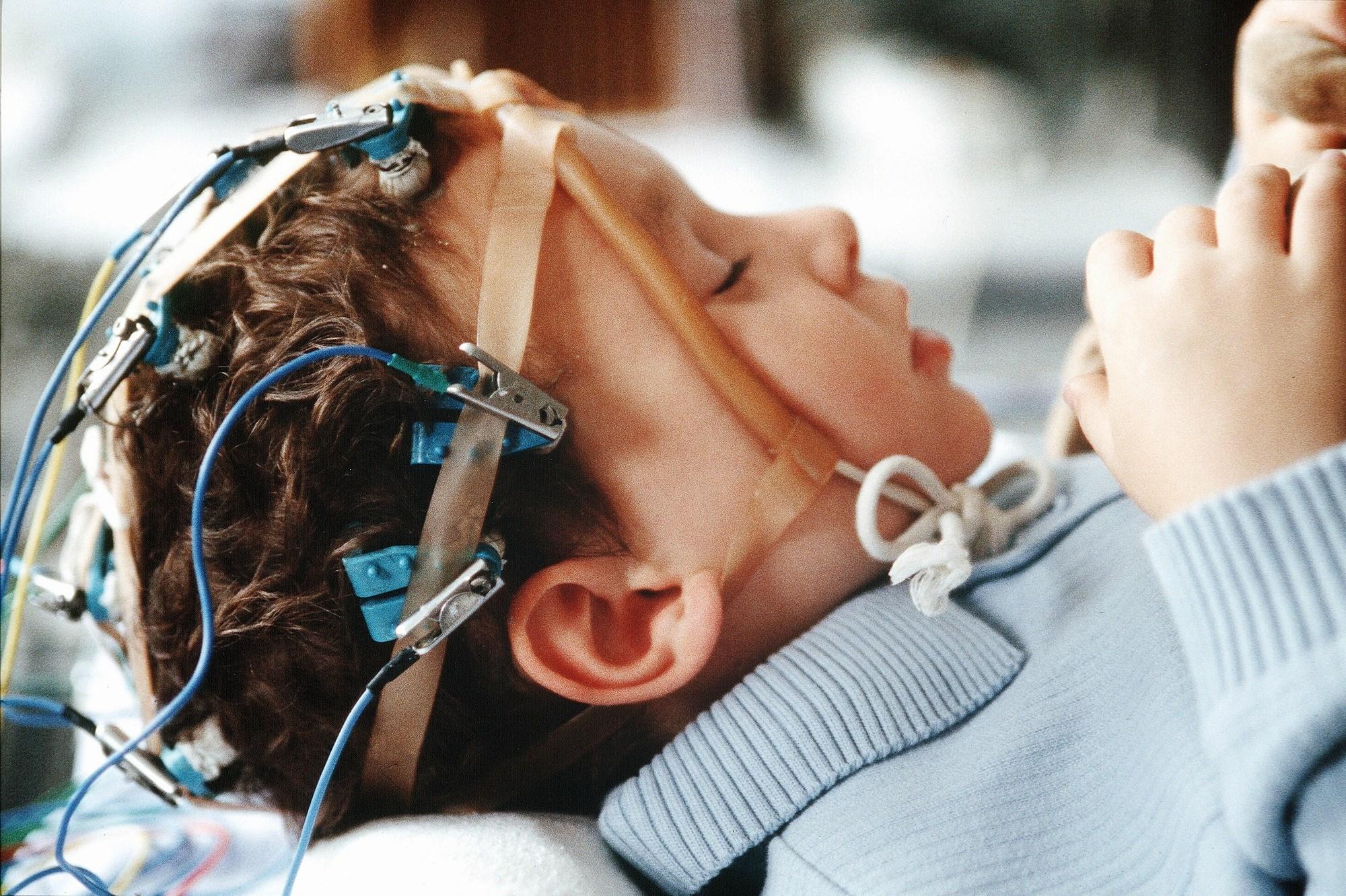 Fenfluramine Improves Emotion and Behavior Regulation in Pediatric Dravet Syndrome