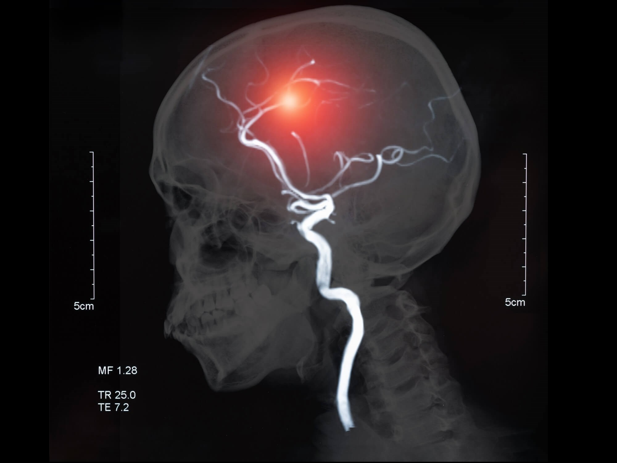 According to the study investigators, cerebrovascular disease may account for approximately 50% of new cases of epilepsy in patients older than age 65.