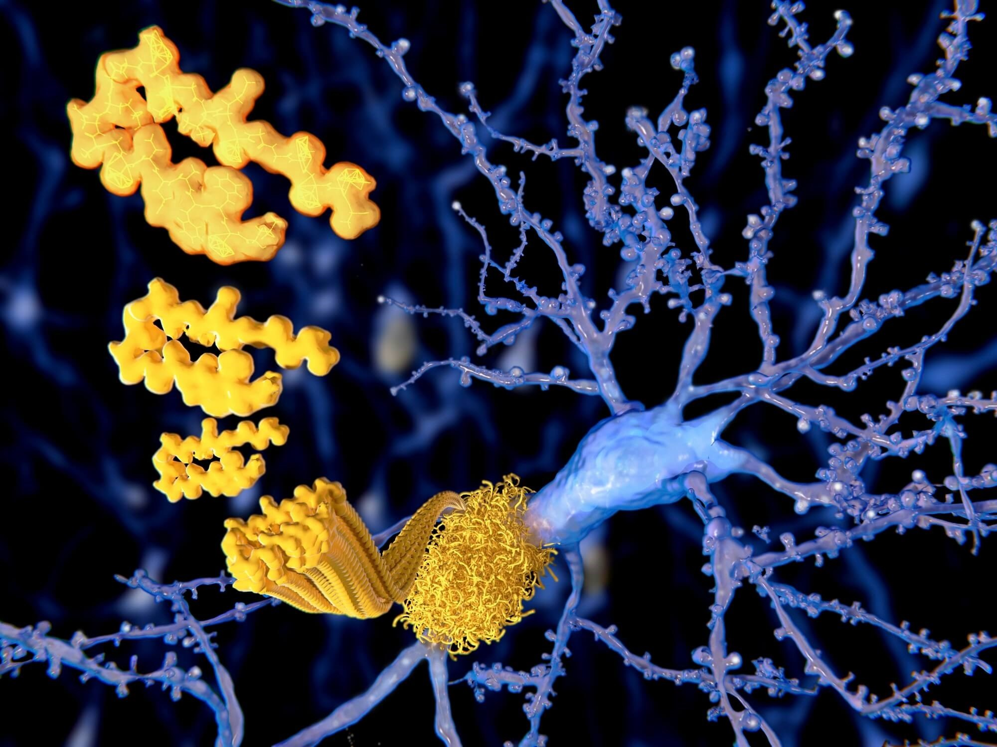Investigators examined the onset, sequence, and rate of progression of biomarker and clinical measures across the spectrum of Alzheimer disease, using the Dominantly Inherited Alzheimer Network study.