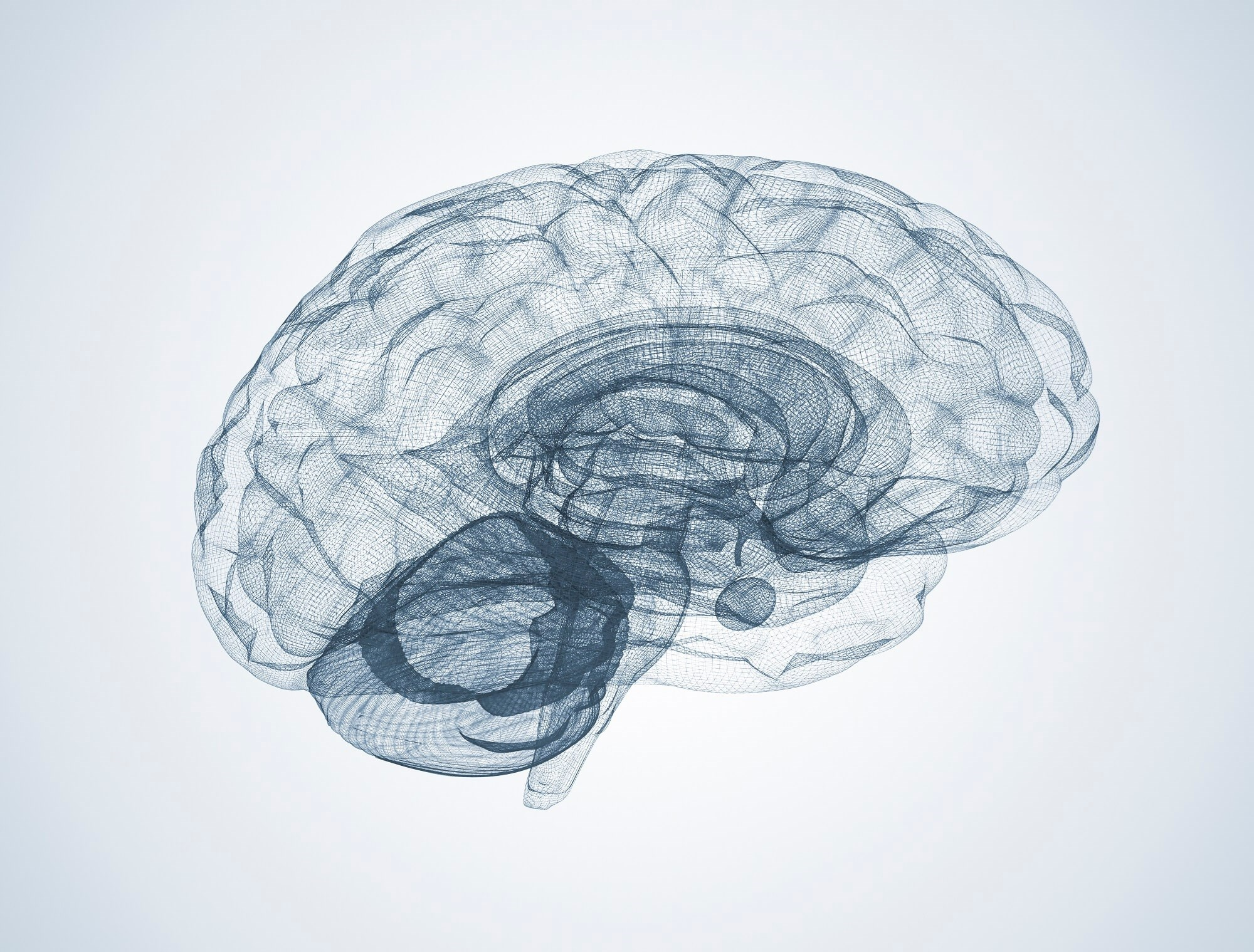 Obesity Linked to Lower Gray Matter Brain Volume