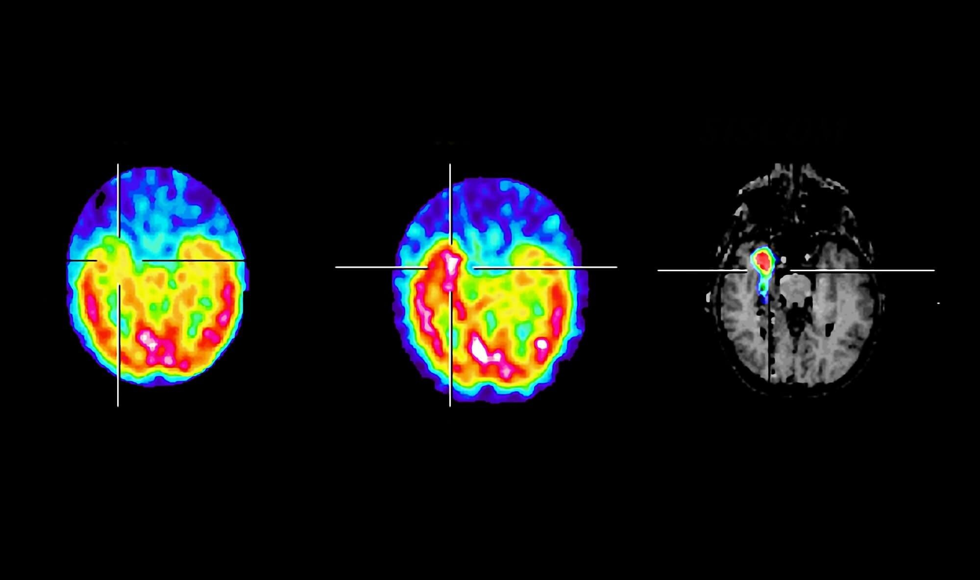 The investigators compared subcortical activation, or an increased ictal uptake vs the interictal uptake, and epilepsy characteristics between patients. <i>Credit:ISM / Dr Marie-Odile HABERT</i>