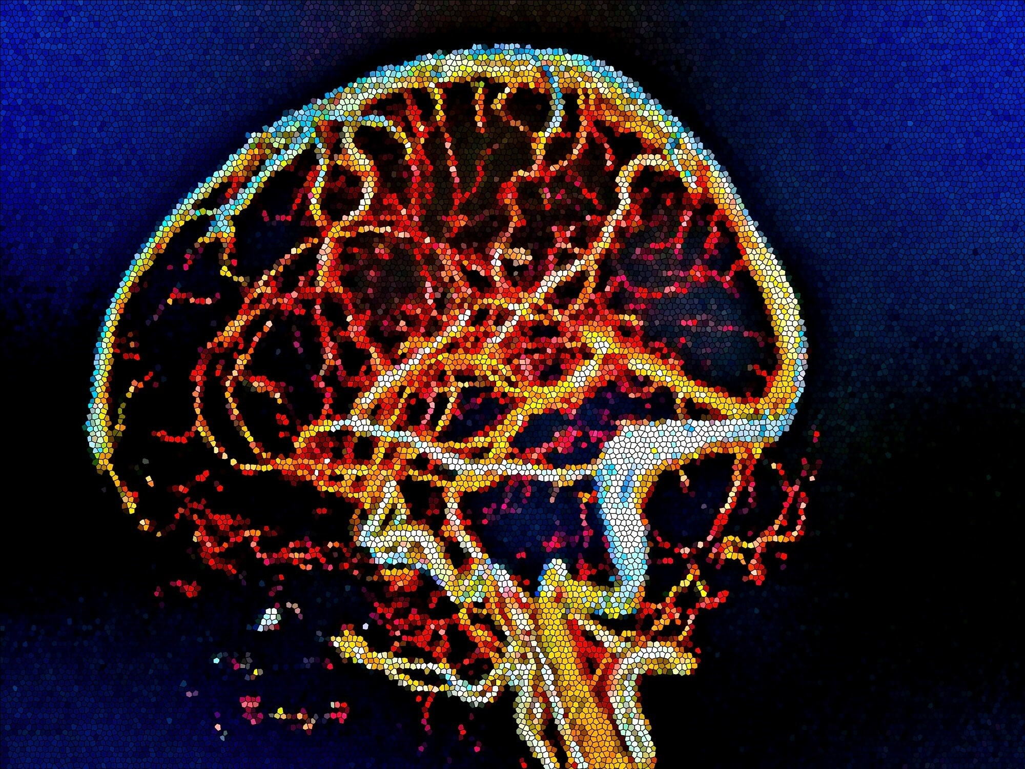 Investigators recommend additional treatment to improve stroke outcome in patients with infratentorial acute ischemic stroke when baseline NIHSS score is more than 6.