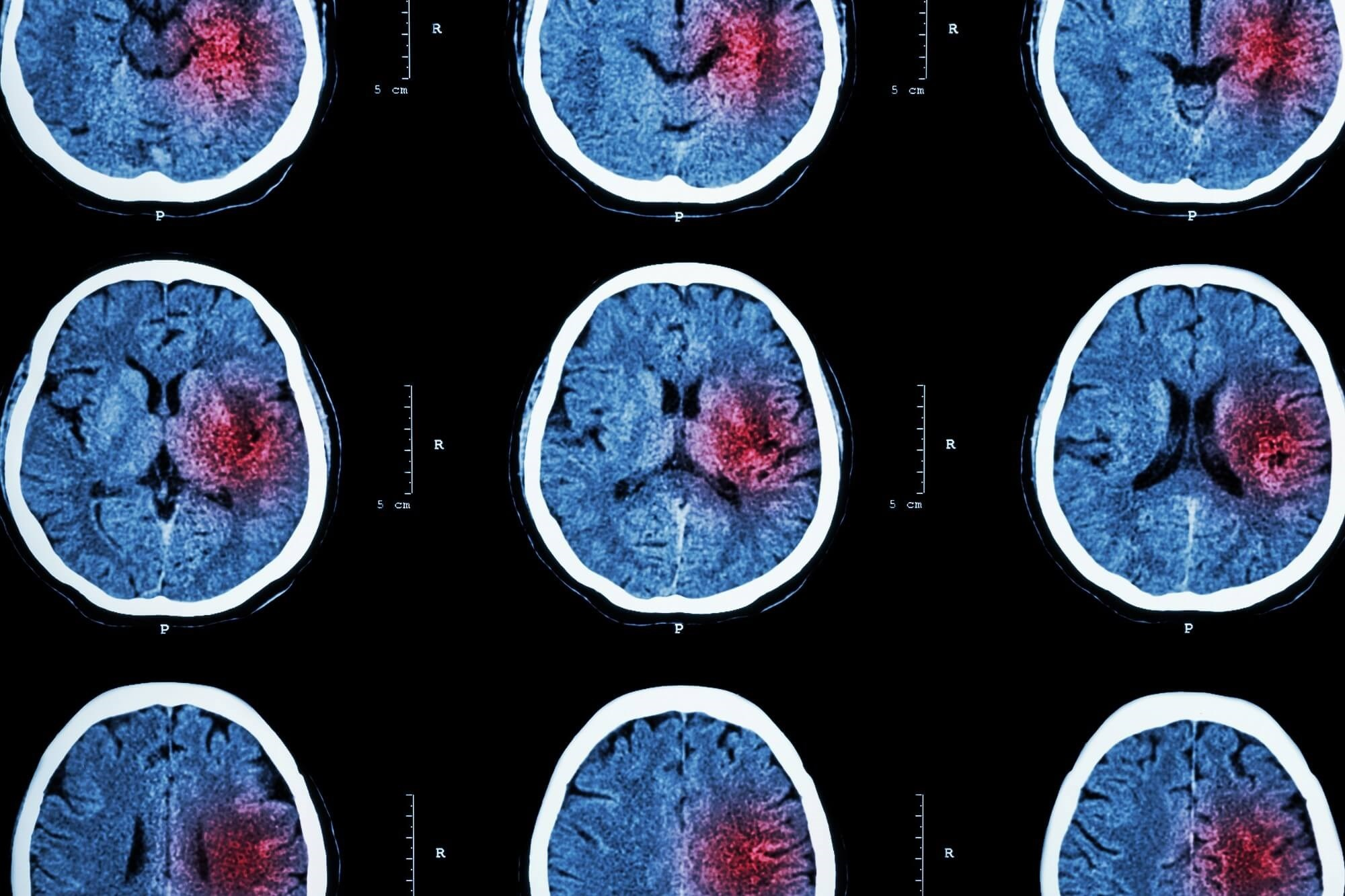 Alteplase Impedes Progression of Poststroke Ischemic Brain Lesions