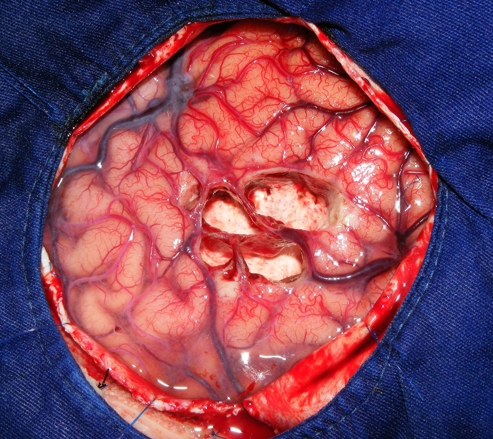 Postresection Monitoring May Provide Further Insights on Epileptogenic Zone Following Multistage Epilepsy Surgery