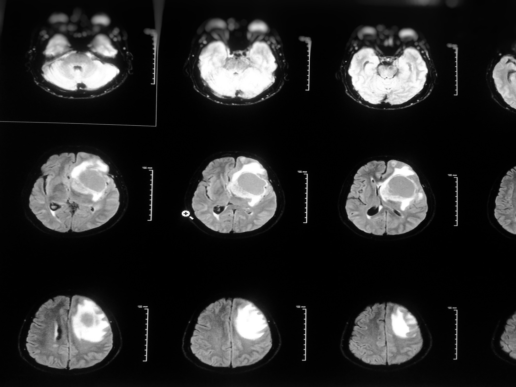 Sex Differences ID'd in Response to Glioblastoma Treatment