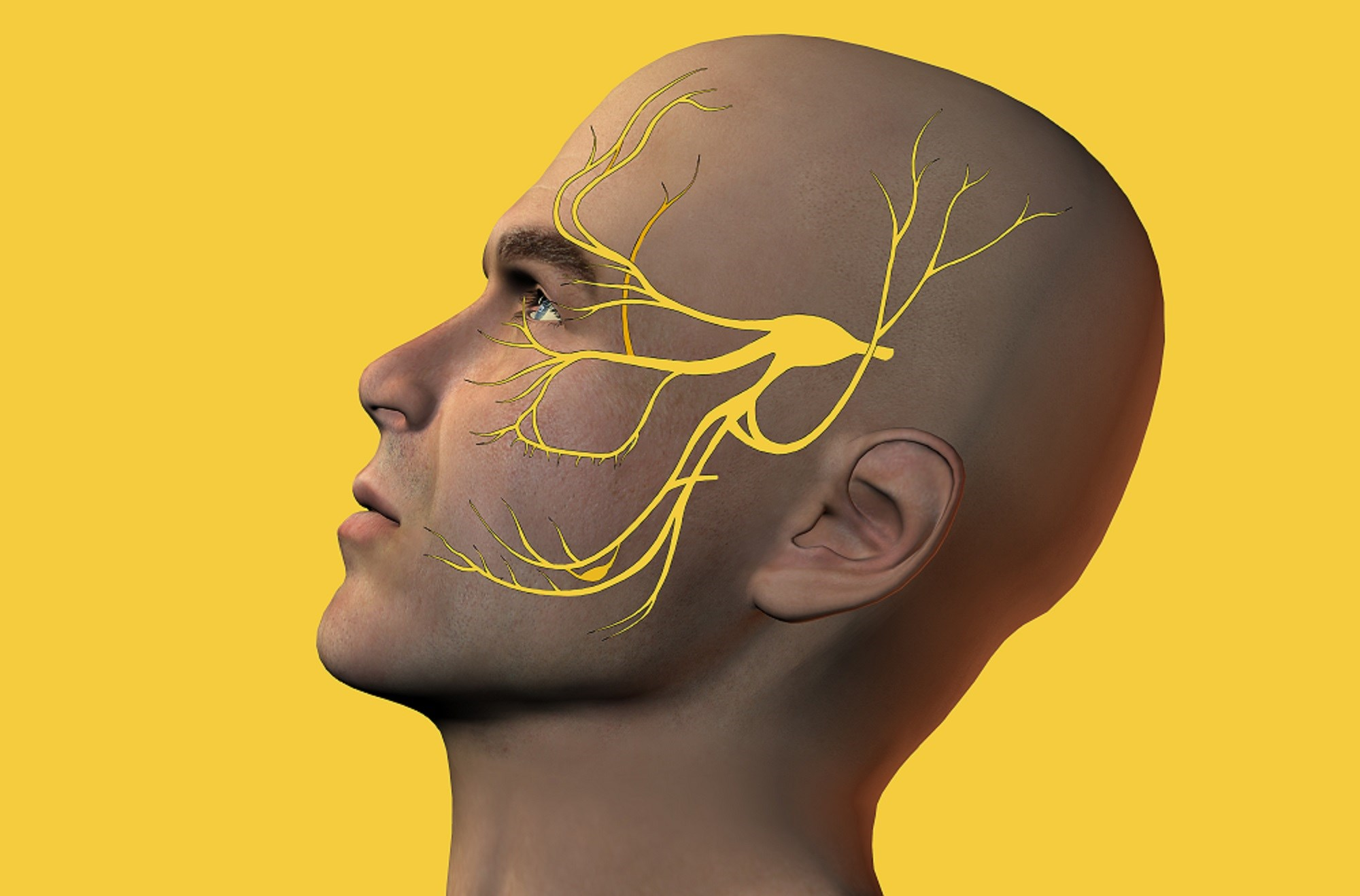 External Trigeminal Nerve Stimulation May Alleviate Migraine Pain