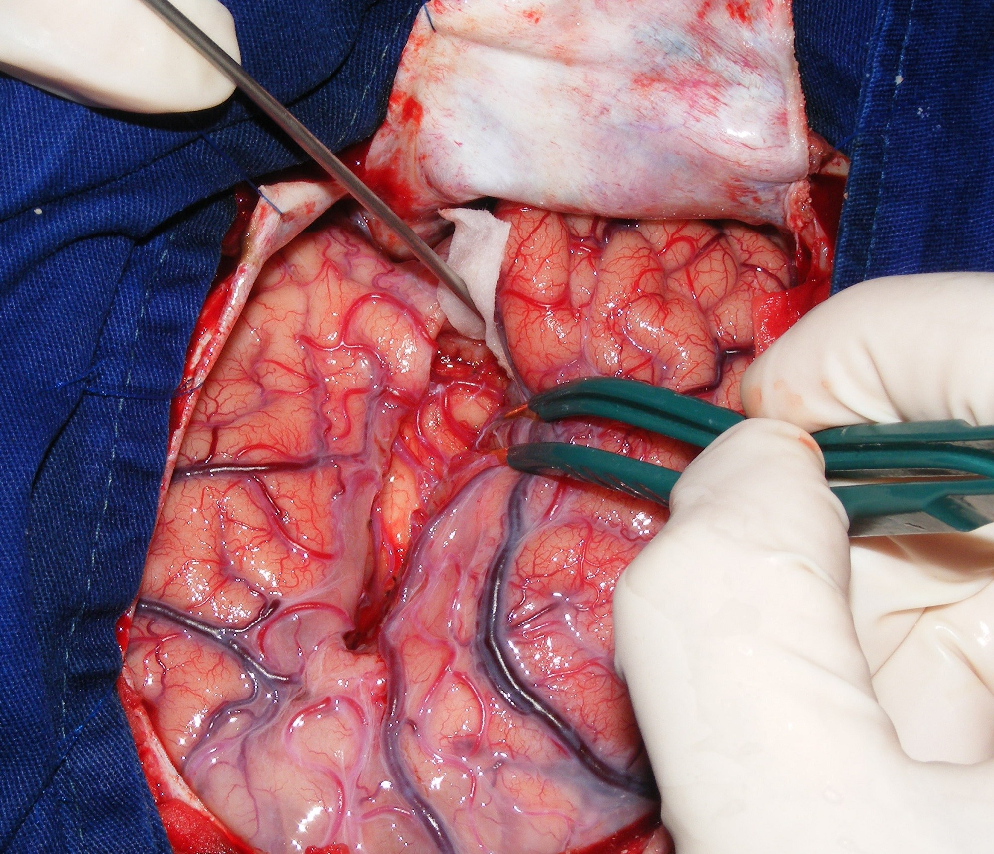 Researchers ID Factors Predictive of Naming Decline After Epilepsy Surgery