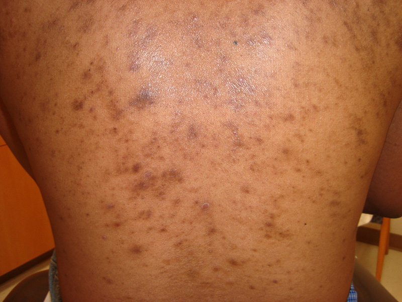 Post-inflammatory Hyperpigmentation and Hypopigmentation ...