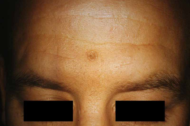 Trichofolliculoma